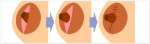 乳头内陷矫正