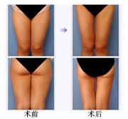 大腿吸脂手术前后对比图