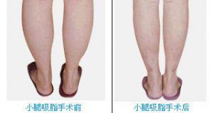 小腿吸脂手术