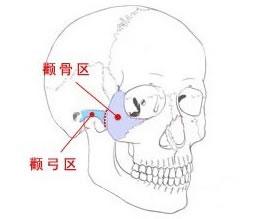 颧弓缩窄手术