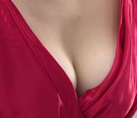 乳房不对称矫正