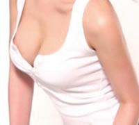 乳房畸形矫正